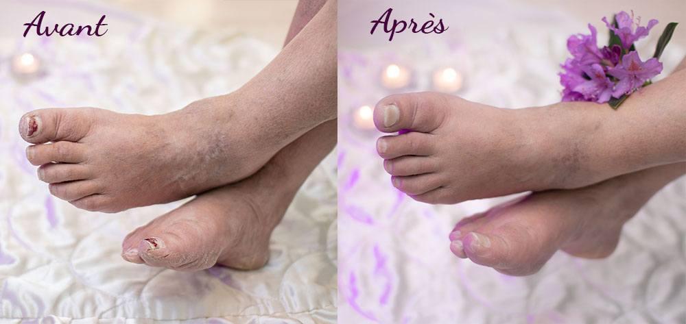 Pieds avant le soin pantoufle de verre à gauche, et à droite les même pieds après, visiblement mieux hydratés, plus lisses et d'apparence moins rugueuse.